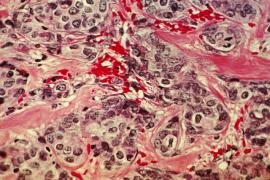 Microscope slide of breast cancer. From the NIH Image Gallery