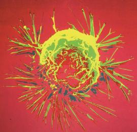 View of a breast cancer cell as seen through a microscope